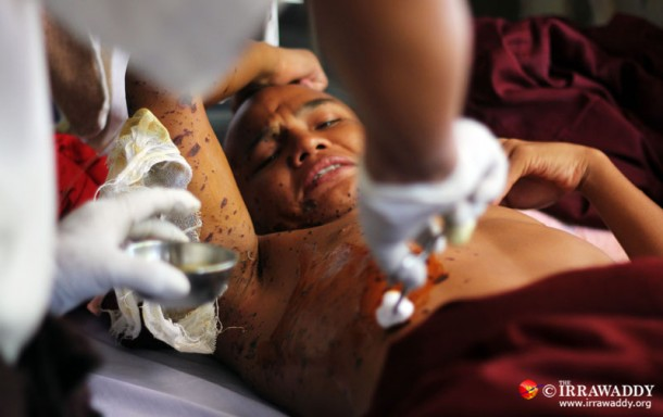 A monk receives treatment at Mandalay General Hospital following a crackdown on anti-mine protests on Nov. 26. (Photo: JPaing / The Irrawaddy)