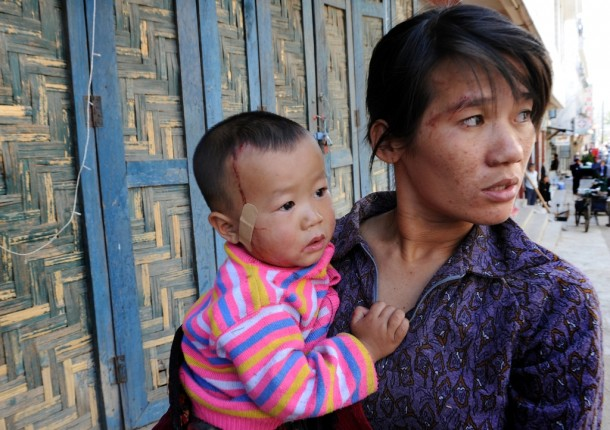 Ji Ji, a Kachin woman who suffered minor injuries when an explosion hit central Laiza at around noon on Wednesday, Jan. 23, holds her child, who was also slightly injured. (Photo: Steve Tickner / The Irrawaddy)