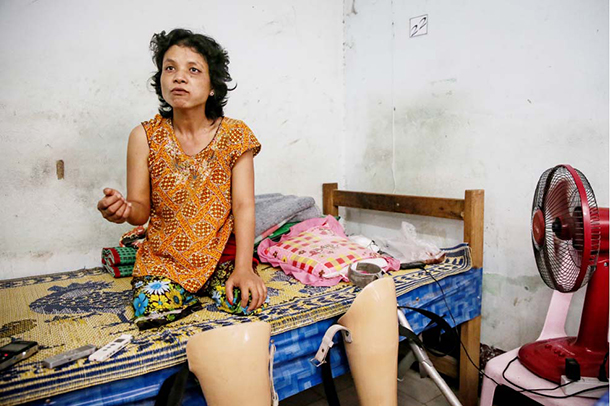 Mya Win, now 30, lost her legs after stepping on a landmine in Karen State in 2000. (Photo: Hein Htet / The Irrawaddy)