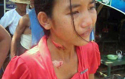 Aye Yu Aung of Kyaukgyi Township was badly burnt by her employer. (Photo: Facebook)